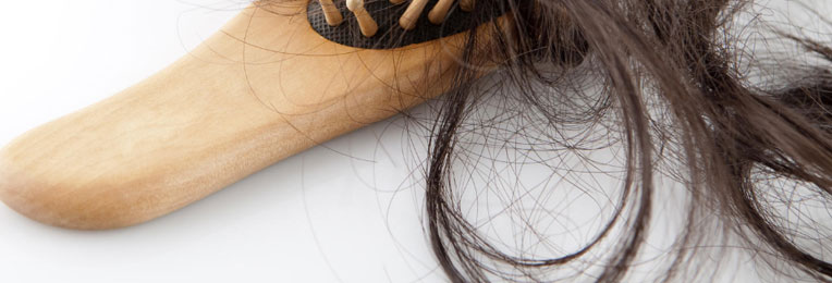 Могут ли выпасть все волосы у женщин